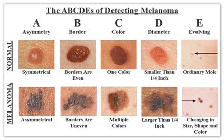 Melanoma Oblique Hair Spa